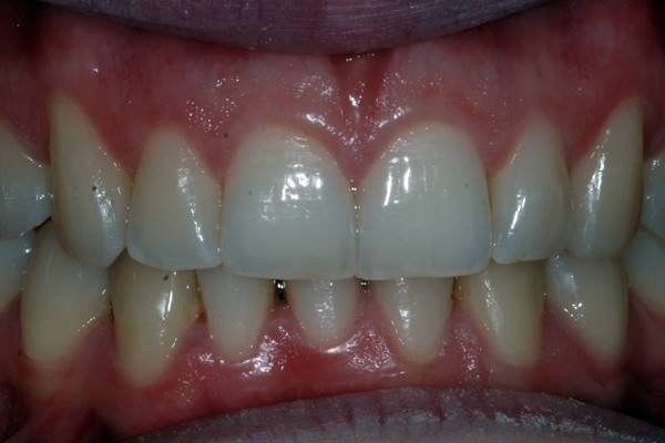 Case 2 After